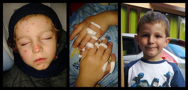 foto verruche bambini matteo prima e dopo